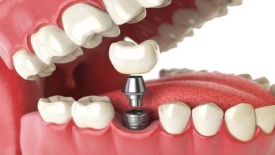 Photo of 3 Things to Know About Dental Implants Before Getting Them in Sydney